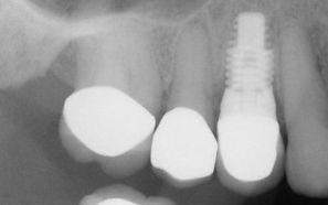posterior_implant.jpg