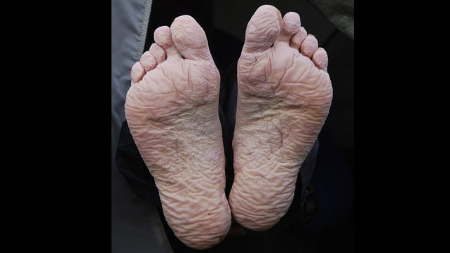 863_Trench_Foot-642x361-slide1.jpg