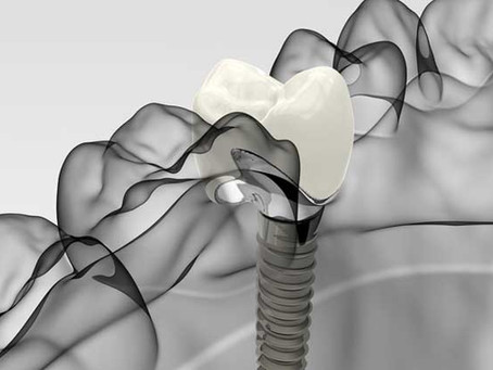 ALL-ON-X  IMPLANT