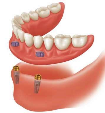 Affordable implant support denture