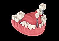 castle hill dental implant
