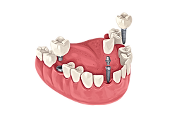 castle hill dental implant