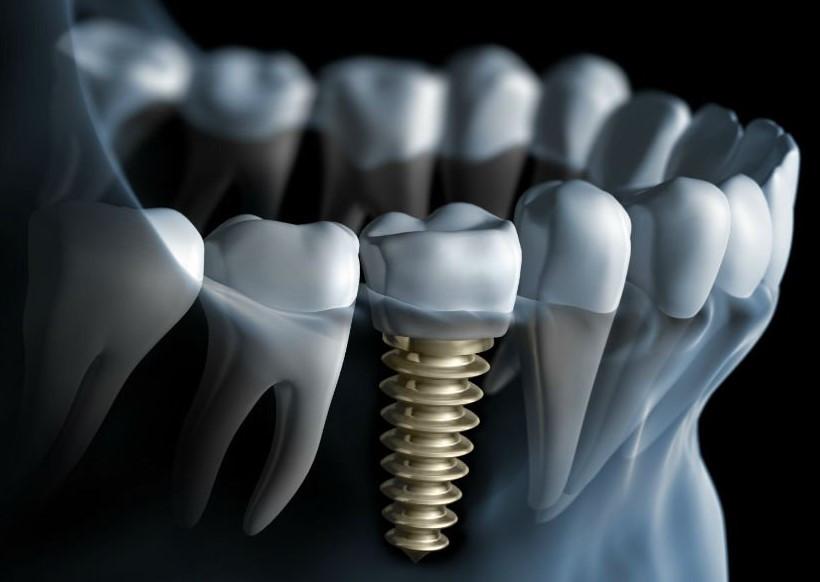 Affordable dental implant kellyville
