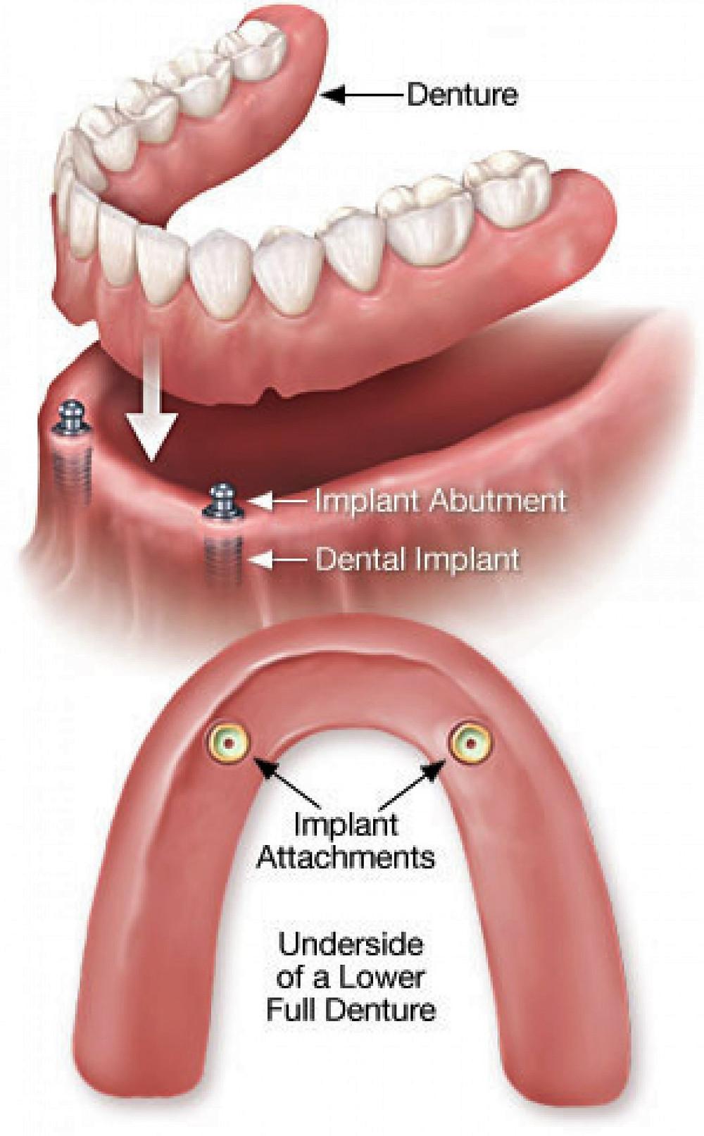 affordable implant over denture Sydney hills area