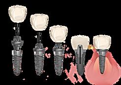 dental implant sydney