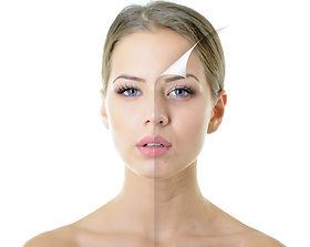 peeling_laser_facial.jpg
