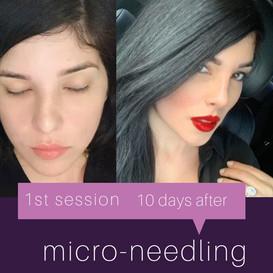 micro-needling
