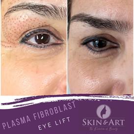 plasma fibroblast