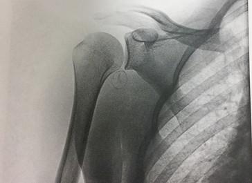 Shoulder recovery v2