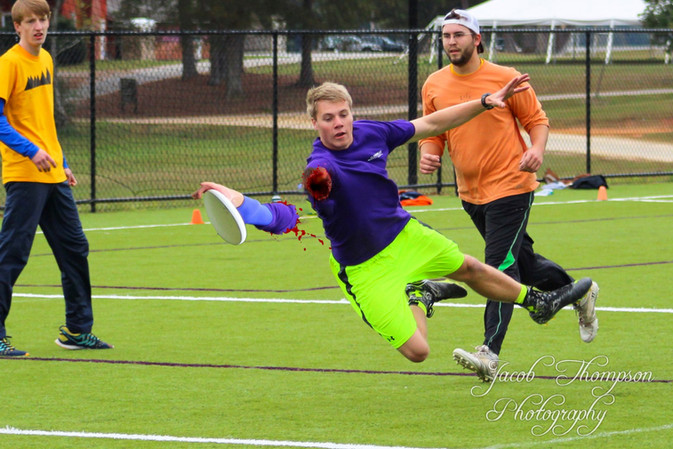 Jacob Thompson arm injury