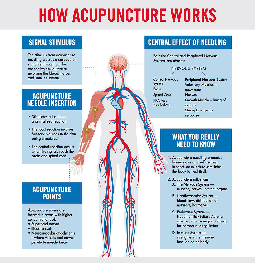 how-acupuncture-works-infographic-trimme