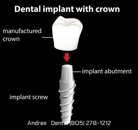 505 implant.jpg