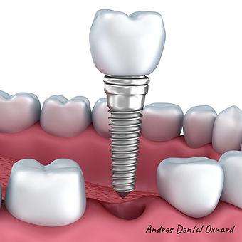 729 Implant.jpg
