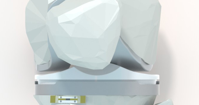 OrthoTech Innovation Stretegy