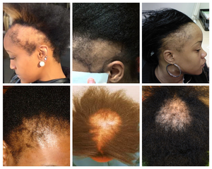 Black Women And Hair Loss How To Prevent It
