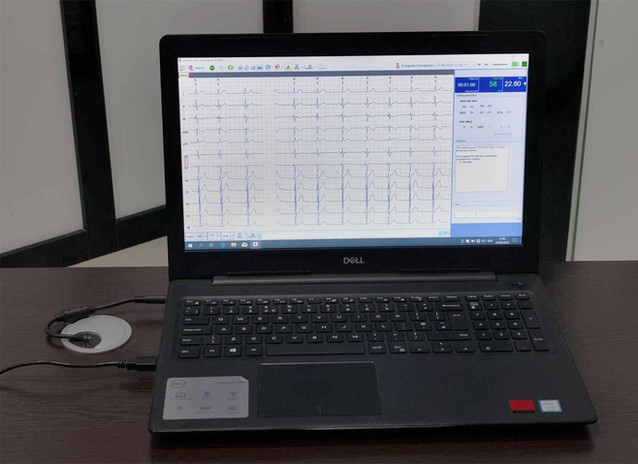 ECG analysing through highly suffisticated software