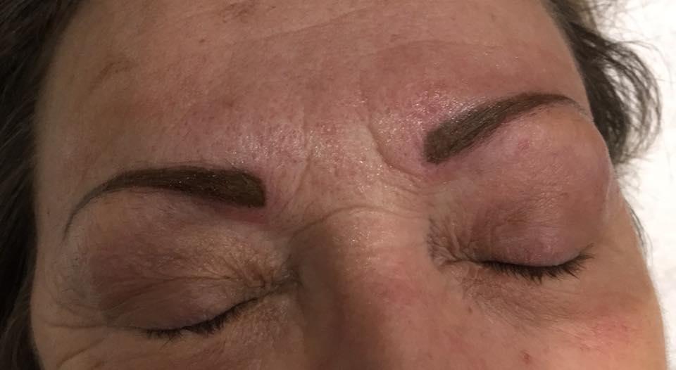 Reconstruction complète des sourcils