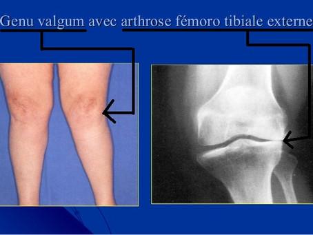 L'Ostéopathie et l'arthrose - Ilana BENAÏS Ostéopathe Paris 9