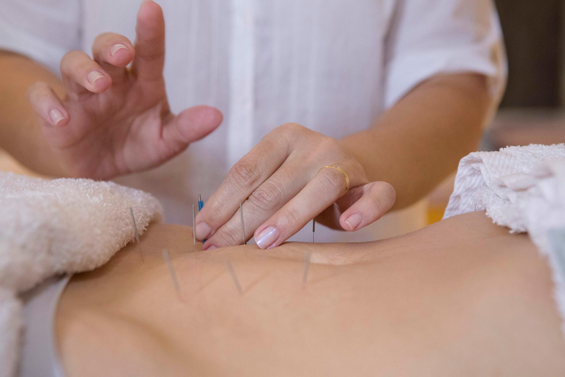 acupuntura-dra-daniella-leiros