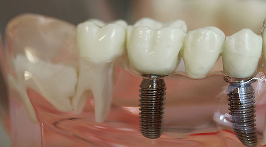 Dental implants, dentistry, The family dentist