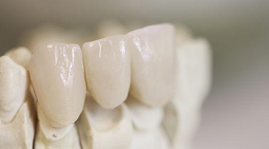 Dental brides, dentistry, The family dentist