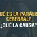 ¿Qué es la Parálisis Cerebral? y ¿Qué la causa?
