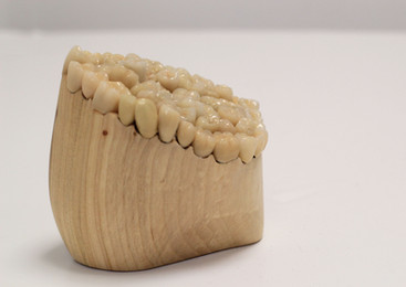 Dentine #4