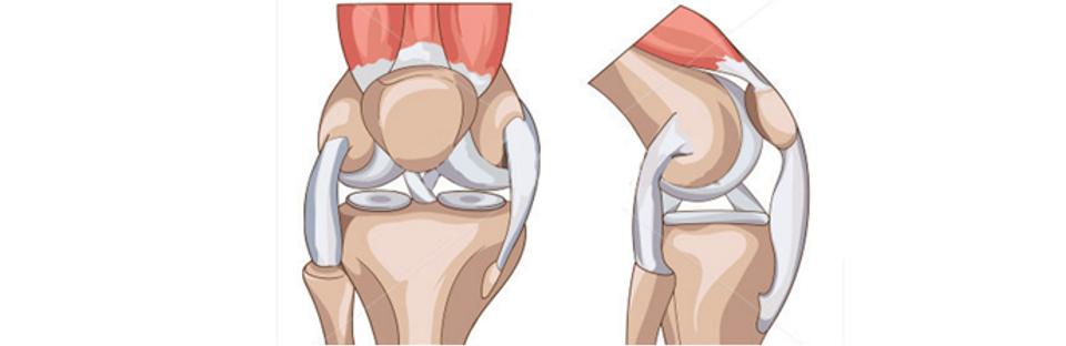 lesao de menisco - cirurgiao de joelho.p