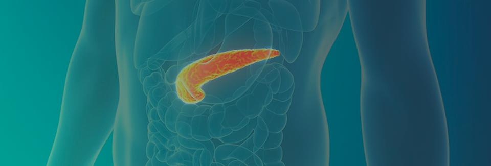 Câncer-do-pâncreas-médico-dr-james-fukud