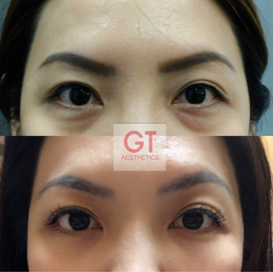 Eye Rejuvenation Treatment