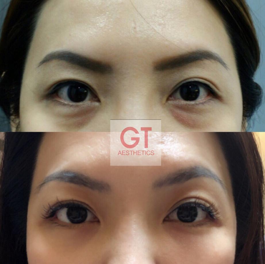 Eye Rejuvenation Treatment