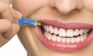 Professionelle Zahnreinigung: