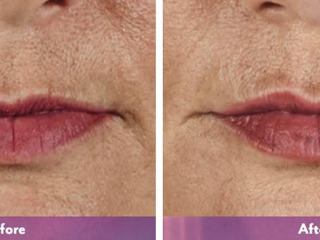 Enhancing Lips And Restoring Volume With Volbella®