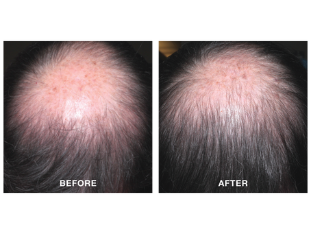 PRP and Minoxidil Solution for Hair Regrowth