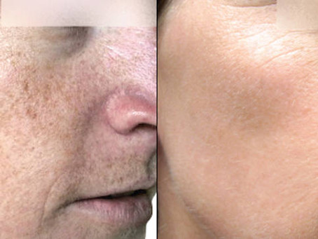 BBL And Profractional™ Laser Treatment For Resurfaced, Luminous Skin