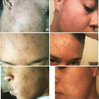 Pigmentation Correction and Acne Treatments