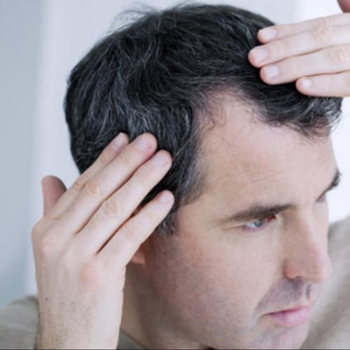 Testostérone, cheveux, thyroïde, DHT et résistance