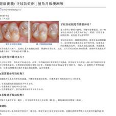 牙紋防蛀劑(窩溝封閉)