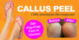 Callus Peel Leicester