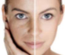 MicroNeedling Leicester