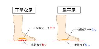 扁平足について(湘南・平塚の接骨院)
