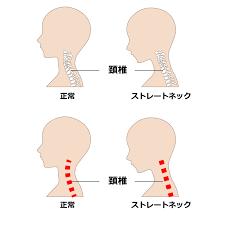 胸郭出口症候群について(湘南・平塚の接骨院)