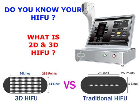 DO YOU KNOW YOUR HIFU?
