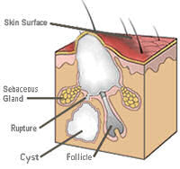 Prestige Dermatology - Cyst Removal