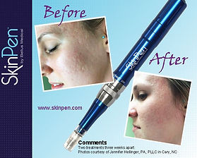 SkinPen Before and After - 2