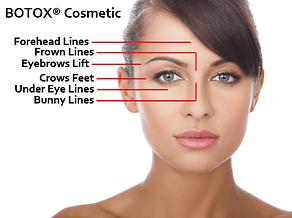 Prestige Dermatology - Botox