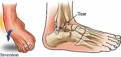 ankle_tear.webp