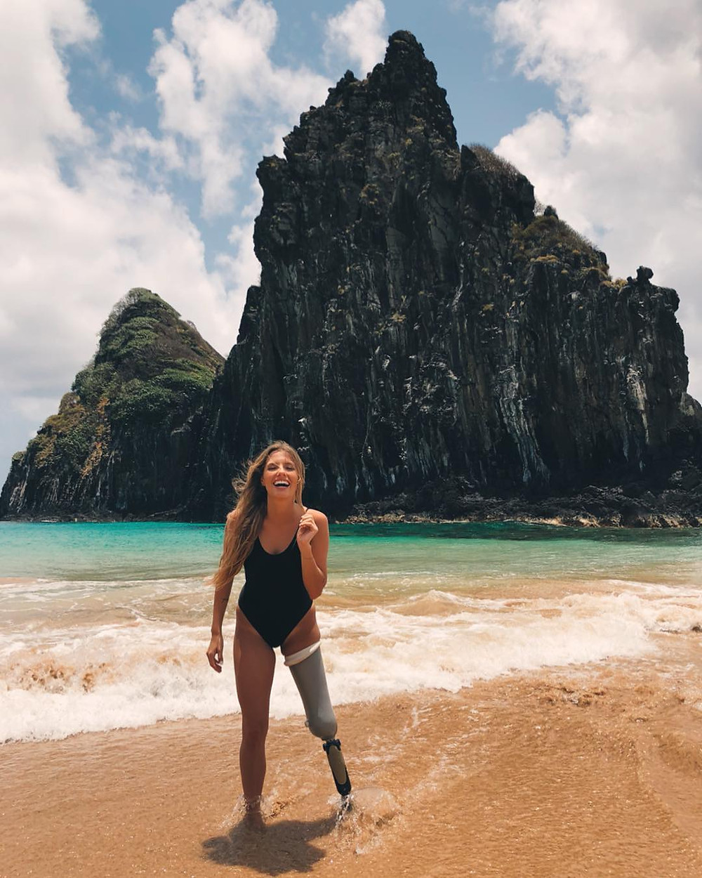 What is Sexy:  Disabled Model Paola Antonini