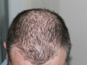 Four Great Ways to Combat Hair Loss