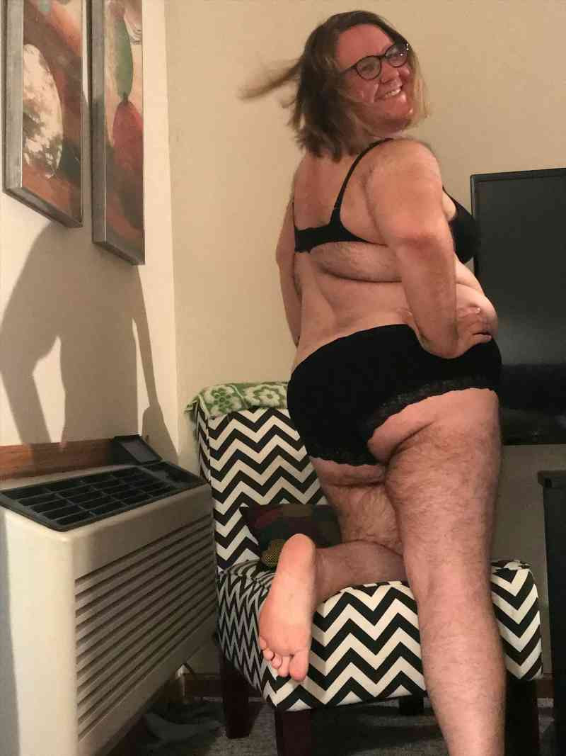 Woman with Excess Body Hair Gives Up Shaving